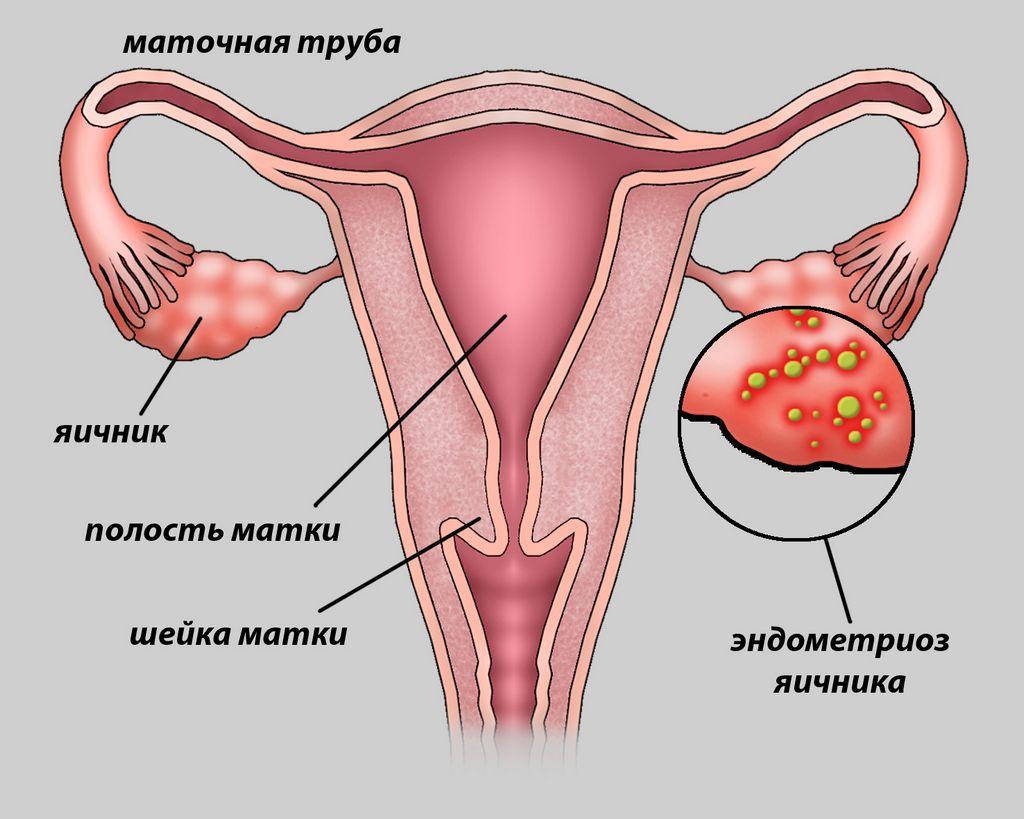 Эндометриоз шейки матки