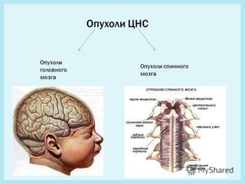 Опухоли ЦНС
