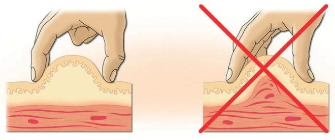 Способ формирования складки