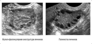 визуальное изображение яичников