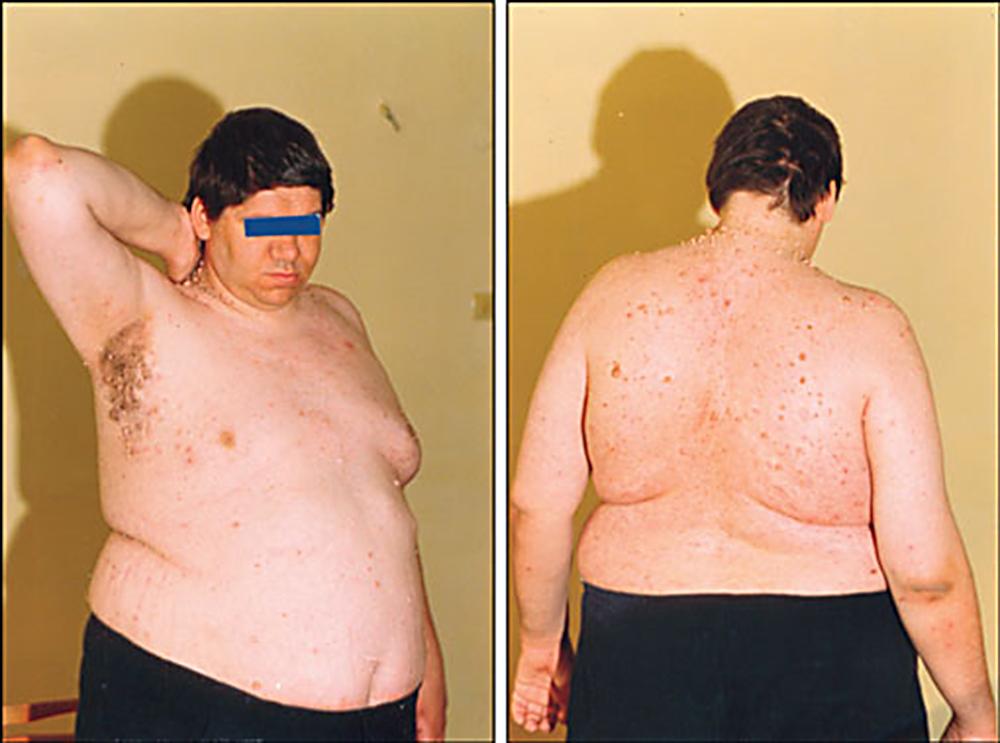 Похудение симптомы какой болезни